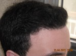 8months hairtransplantation 150x112 Results 8 months after an hair transplant